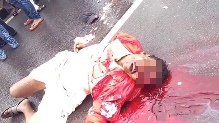 【閲覧注意】事故で死んだ男。頭が割れて脳が飛び出てしまったグロ動画。