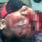 【閲覧注意】バイク事故で死んだ男の頭、パックリ割れてしまったグロ動画。