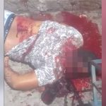 【閲覧注意】殺し屋に頭を撃たれて殺された男 in ブラジル。