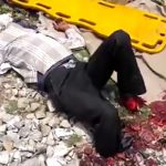 【閲覧注意】線路を横切ろうとして列車に両足首を切断された男・・・。