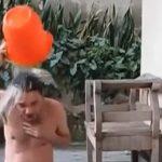 熱湯を浴びるチャレンジをしたイカれた男、火傷を負ってしまう・・・。
