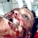 【閲覧注意】顔に何発も銃弾を撃ち込まれて死んだ女性のグロ動画。