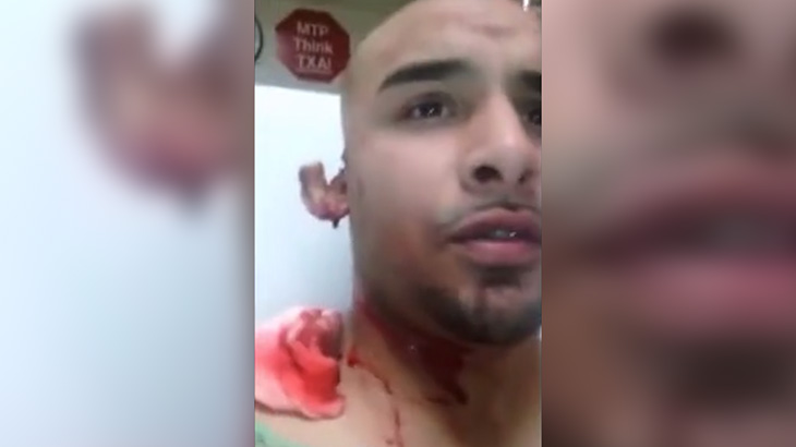 【閲覧注意】ストリートファイトの末、右耳を噛みちぎられてしまった男・・・。