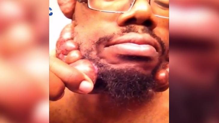 【衝撃映像】顔に無数のコブが出来てしまった男性。