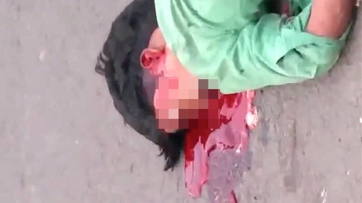 【閲覧注意】事故で頭が割れ、目玉が飛び出してしまった男のグロ動画・・・。