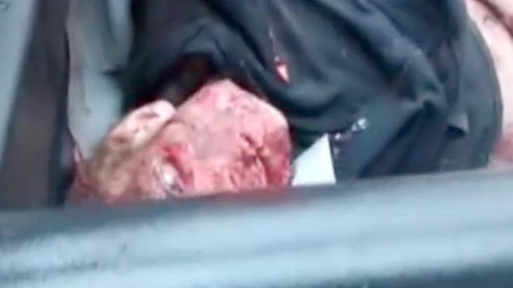【閲覧注意】事故で死亡した男性の死体、不気味過ぎる・・・。