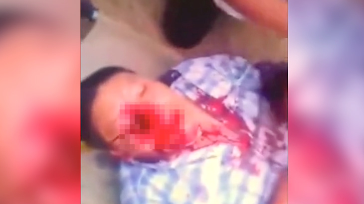 【閲覧注意】闘牛の角が顔に刺さり、右目が無くなってしまった男のグロ動画・・・。