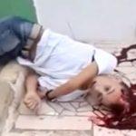 【閲覧注意】頭を銃で撃たれ、目を見開いた状態で死んだ15歳の少年。