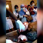 【閲覧注意】検死解剖の映像。男性の死体から脳を取り出すグロ動画。