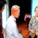 【閲覧注意】頭の右側面をまるでスライスされたかのような病気を持つおじいちゃん。