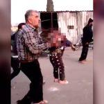 【閲覧注意】空爆された街。頭を吹き飛ばされた小さな娘を抱えて歩く父親。