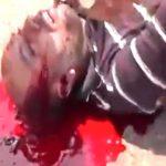 【閲覧注意】こめかみから大量の血液がドバドバ流れ出てしまった男性のグロ動画。