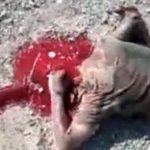 【閲覧注意】爆弾で頭を吹き飛ばされてしまった兵士・・・。