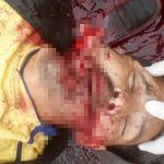 【閲覧注意】斧で口を破壊されて殺された男のグロ画像・・・。