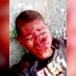 【閲覧注意】銃撃された男、顔に穴が開いてしまうものの奇跡的に生き残る。
