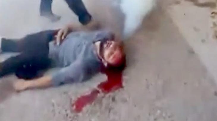 【衝撃映像】催涙弾が頭に刺さってしまった男性・・・。