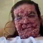 【衝撃映像】顔面がコブだらけになってしまった女性・・・。