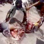 【閲覧注意】事故で上半身と下半身がほぼ切断されてしまった男のグロ動画・・・。