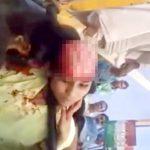 【閲覧注意】事故で頭皮がペロンと剥けてしまった女性・・・。