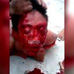 【閲覧注意】レイプ犯の男、怒り狂った住民たちに顔を血まみれにされてしまう・・・。
