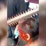 【衝撃映像】のこぎり刀が頭に突き刺さったオッサン・・・。