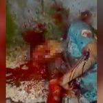【閲覧注意】ショットガンで顔を撃たれるとこうなる・・・。