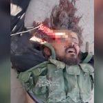 【閲覧注意】頭を撃ち抜かれて死んだ兵士の顔、ヤバすぎる・・・。