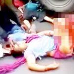 【閲覧注意】トラックに轢かれて脚がグチャグチャになった女性のグロ動画。