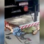 【閲覧注意】トラックに下半身を切断されてしまった男、まだ生きてる・・・。