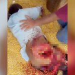 【閲覧注意】農業機械に巻き込まれて右脚を失ってしまった男のグロ動画。