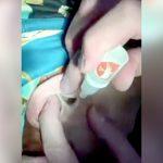 【衝撃映像】耳の穴に液体を流し込んで這い出てきたものが気持ち悪すぎる・・・。