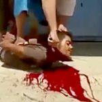 【閲覧注意】ナイフで首を切るのが下手クソだとこうなる・・・。