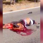【閲覧注意】バイク事故で下半身がグチャグチャになった男性、上半身を動かすグロ動画。