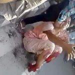 【閲覧注意】列車に両足首を切断されてしまった女性のグロ動画。
