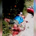 【閲覧注意】バイク事故で左脚がグチャグチャになった男、発狂してしまう・・・。