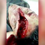 【閲覧注意】頭から顔にかけて深く切り裂かれてしまった男、メチャクチャしゃべる・・・。