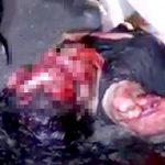 【閲覧注意】車に轢かれて顔が無くなってしまった女性のグロ動画・・・。