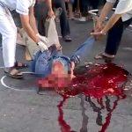 【閲覧注意】事故現場にうつ伏せになって死亡した男性を裏返したら顔が破壊されてたグロ動画・・・。