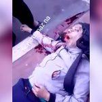【閲覧注意】事故で瀕死の男の顔、ヤバいことになってしまう・・・。
