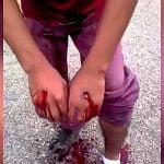 泥棒の男、罰として両手とふくらはぎを銃で撃たれてしまう。