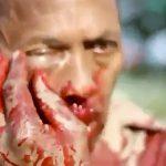 【衝撃映像】催涙弾が当たってしまった男の顔、めちゃくちゃ腫れ上がってしまう・・・。