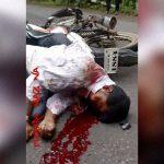【閲覧注意】バイク事故で倒れていた男の顔に近づいてみた結果 → ヤバいことになってた・・・。