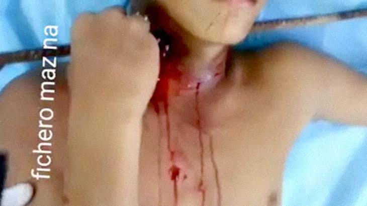 【閲覧注意】鉄筋棒が首を貫通した男性を手術するグロ動画。