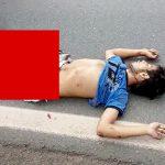 【閲覧注意】トラックに轢かれた男性の両脚、皮膚が剥がれて筋繊維がむき出しになってしまう・・・。