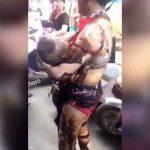【閲覧注意】全身に重度の火傷を負ってしまった母親と幼い息子。