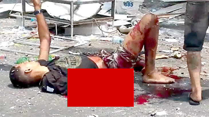 花火の爆発により右腕を破壊されてしまったグロ動画。