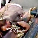 【閲覧注意】農業機械に挟まれてしまった男性、両腕を失ってしまう・・・。