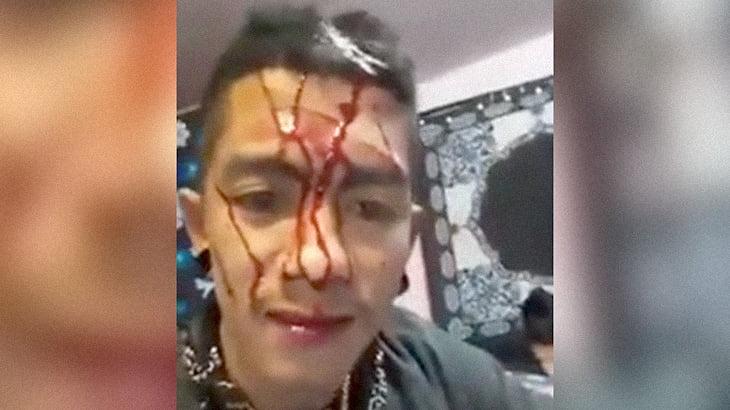 自分の頭をナイフで切って血を流す男。