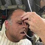 大きな釣り針が顔に刺さってしまった男、引き抜いた後にもう一度刺してもらう映像。
