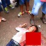 【閲覧注意】トラックに轢かれて左腕を失った男性と、脳が飛び出て死亡した男性のグロ動画。